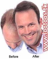 شامپو ضد ریزش مو جنسینگ (فوق العاده قوی)