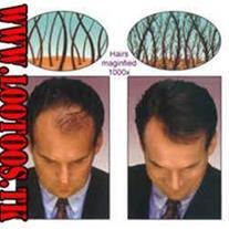 سوپر میلیون هیر-پرپشت کننده مو در 30 ثانیه