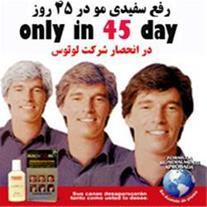 رفع سفیدی مو - بازگشتن موها به رنگ اصلی - 1