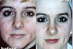 جوان کننده،ضد لک،ضد چین و چروک و سفید کننده پوست