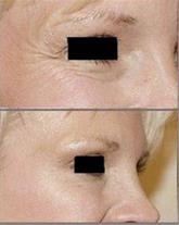 لیفت صورت بدون جراحی پلاستیک یا زخم-دائم و همیشگی