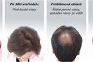 قطره زاندرکس برای رویش مجدد موهای شما