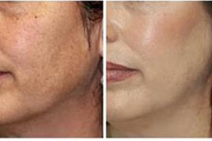 کشیدگی پوست صورت-لیفتینگ پوست-رفع کننده لک و چین..
