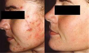 درمان جوش صورت ، جوش پوست و بدن - 1