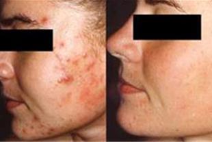 درمان جوش صورت ، جوش پوست و بدن