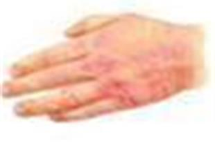 درمان نارحتیهای پوستی و حساسیت