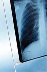 انواع فیلم رادیولوژی و لیتوگرافی در کشور - 1