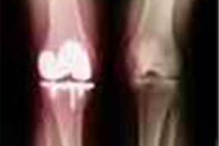 متخصص جراحی استخوان و مفاصل و نواقص مادرزادی