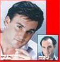 کاشت مو و ترمیم مو شقایق در مشهد