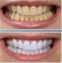 دستگاه سفیدکننده دندان 20 روزه