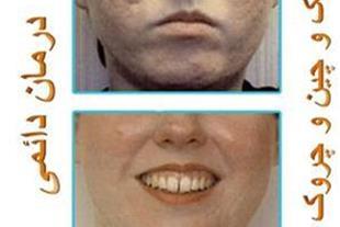 درمان دائم چین و چروک ولک صورت با دستگاه میکرودرم