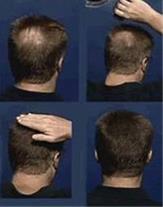 پودر پرپشت کننده مو تاپیک خرید