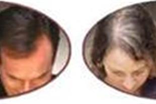 پرپشت کننده مو  perfect اصل