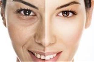جراحی پلاستیک بینی - کلینیک زیبایی دکتر ملکان