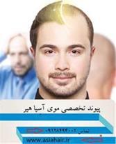 پیوند تخصصی موی آسیا هیر