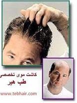 پیوند موی تخصصی طب هیر