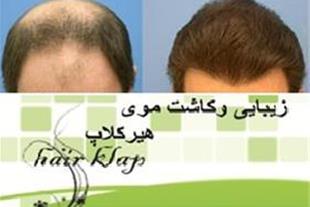 کاشت مو ,کاشت ابرو , Hairklap