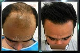 کاشت موی طبیعی FIT و FUT