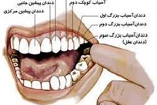 مرکز تخصصی کشیدن دندان-کودک و بزرگسال