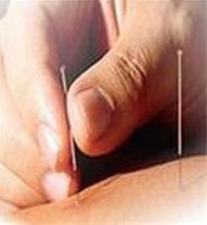 کلینیک طب سوزنی با تخفیف ویژه