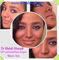 dr mehdi ahmadi nose job جراحی بینی