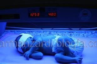 اجاره دستگاه فتوتراپی درمان زردی نوزاد اهواز