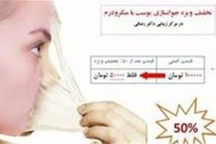 خدمات زیبایی پزشکی در مشهد - لیرز موهای زائد مشهد