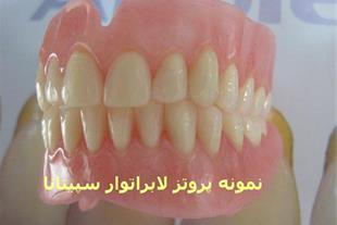 دندان مصنوعی 200000تومان