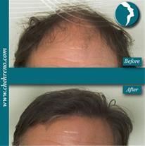 کاشت مو طبیعی روش fut، fit ، تزریق ژل ، لیزر پوست