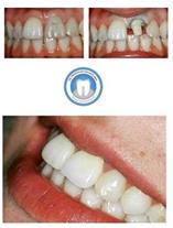 جراح ایمپلنت دندانی و متخصص پروتز دکتر احمدی کلته