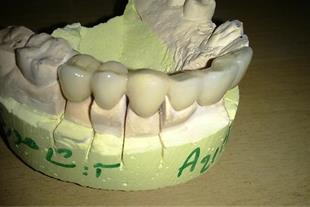 ساخت انواع دست دندان و پلاک