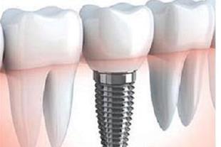 مرکز دندانپزشکی وتخصصی ایمپلنت دکتر اریام
