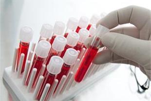 آزمایش تعیین گروه خونی