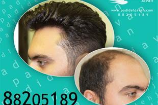 ترمیم مو تنها روش محبوب در جوامع اروپایی و امریکای