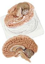 مولاژ آموزشی مغز