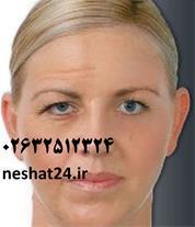 تزریق بوتاکس و رفع چین و چروک ( صورت ، پیشانی