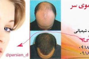 درمان ریزش مو ، تقویت مو ، لکه های صورت