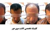 کلینیک تخصصی کاشت مو هور
