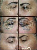 رفع چروک و افتادگی پلک بدون جراحی (مشاوره رایگان)
