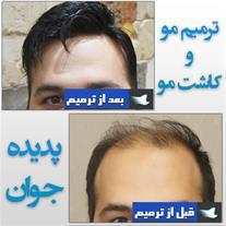 کاشت موی سر - پرپشت کردن موی سر