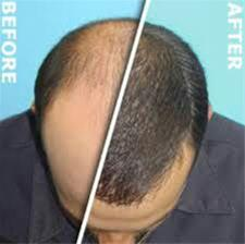 کلینیک مورویان ، موی زنده قابل رشد طبیعی ، مشاوره - 1