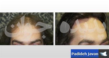 قیمت پیوند موی سر - پیوند مو به روش HRP - 1