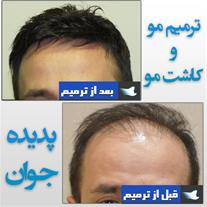 کاشت مو و ترمیم مو بدون جراحی