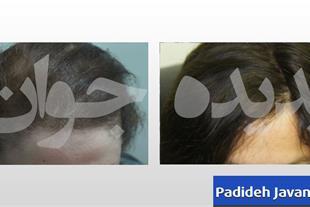 کاشت موی بانوان بدون جراحی