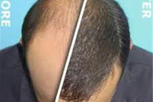 کلینیک مورویان ، موی زنده قابل رشد طبیعی ، مشاوره