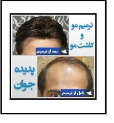 خدمات ترمیم مو و کاشت مو به روش HRP - 1