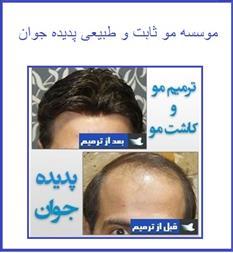 موسسه مو ثابت و طبیعی پدیده جوان - 1
