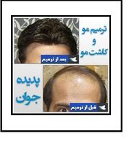 خدمات ترمیم مو و کاشت مو به روش HRP