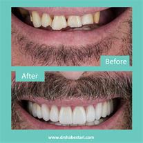 دندانپزشکی فعال در تعطیلات عید نوروز