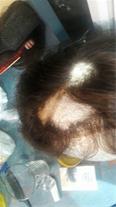 پر کردن پستیژ های ترمیم مو (پدیده کیوان)